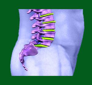 Psychosomatic Spondylolisthesis Pain