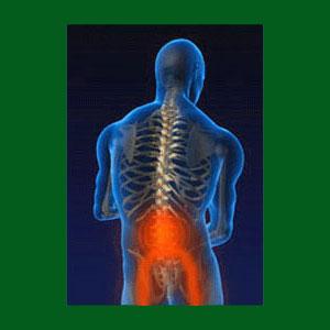 Cauda Equina Syndrome from Spondylolisthesis
