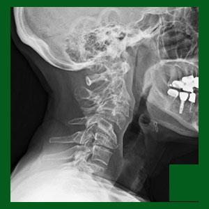 Cervical spondylolisthesis