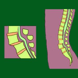 Multiple Spondylolisthesis