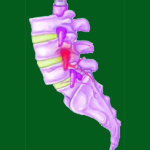 pinched nerve from spondylolisthesis