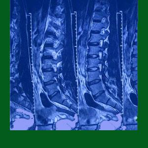 Spondylolisthesis MRI