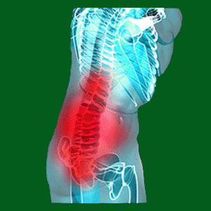 spondylolisthesis back brace
