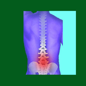 spondylolisthesis facts