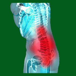 Spondylolisthesis from injury