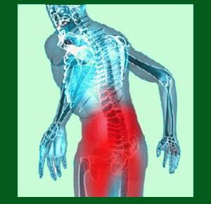 Spondylolisthesis Lower Back Pain