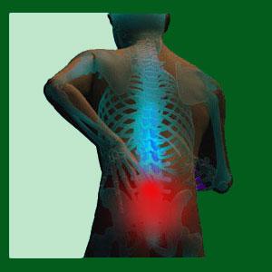 Spondylolisthesis Nerve Ablation