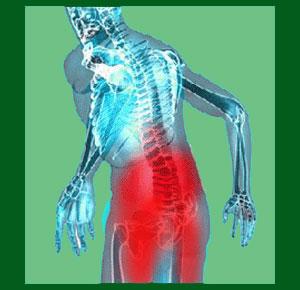 Spondylolisthesis pain management