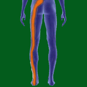 Spondylolisthesis Sciatica