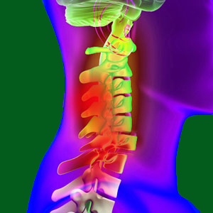 Spondylolisthesis Spinal Cord Injury