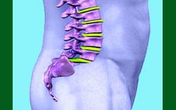 vertebral listhesis
