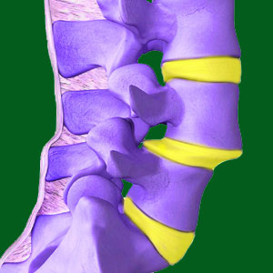 What is Spondylolisthesis?